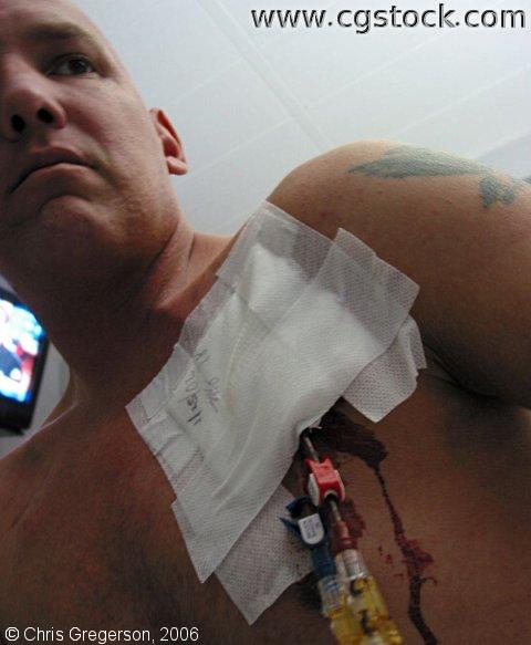 Man with a Bleeding Central Line Catheter